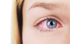 Imagem Deslocamento da Retina
